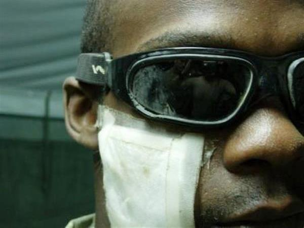 Army Pfc. Douglas K. Phillips shows the damage to his face and his eye protection from a small-arms attack