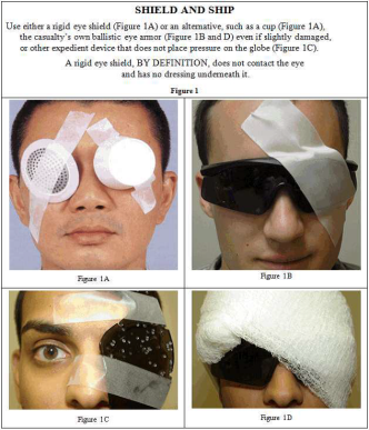 Different Examples of Eye Shields